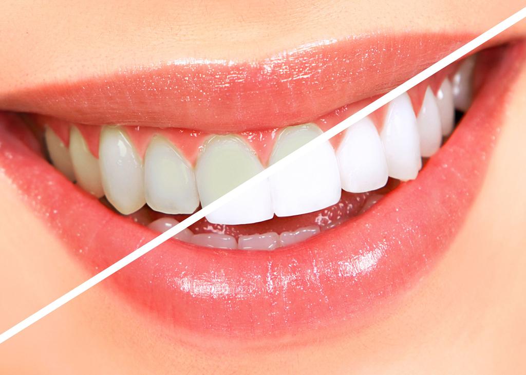 teeth- whitening